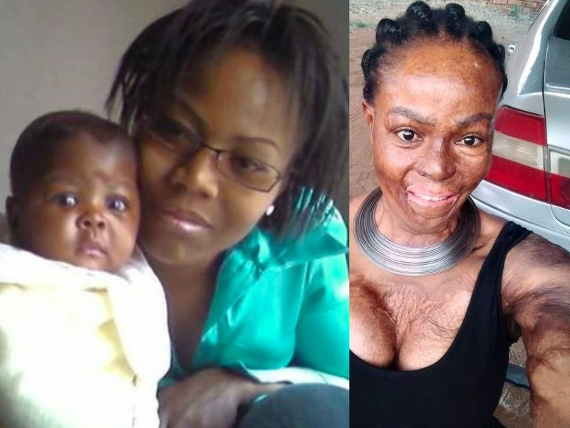 'Can't take it' Woman recalls how she lost her daughter after lover set them ablaze