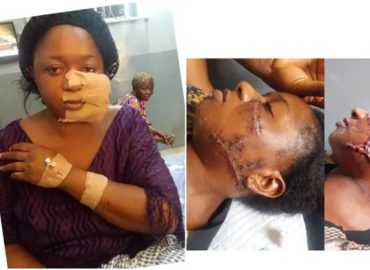 'Barbaric' Lagos landlord and his wife disfigure tenant's face over quit notice (Photos)