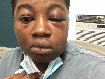 'I was tied to a chair' Nigerian lady narrates how she got kidnapped, beaten, raped after she entered wrong bus